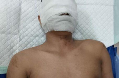Usai Disiram Air Keras, Persada Sembiring Jalani Operasi di RS Adam Malik